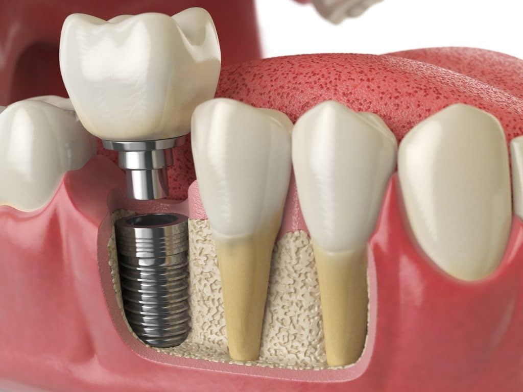 implanty o szerokości 3mm