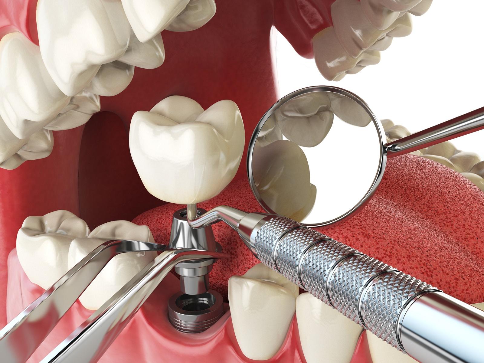 Materiały, z których produkuje się implanty