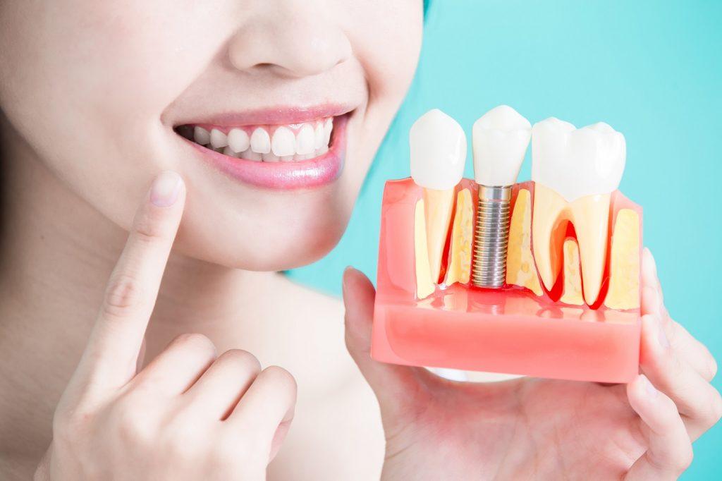 dbania o implanty zębowe