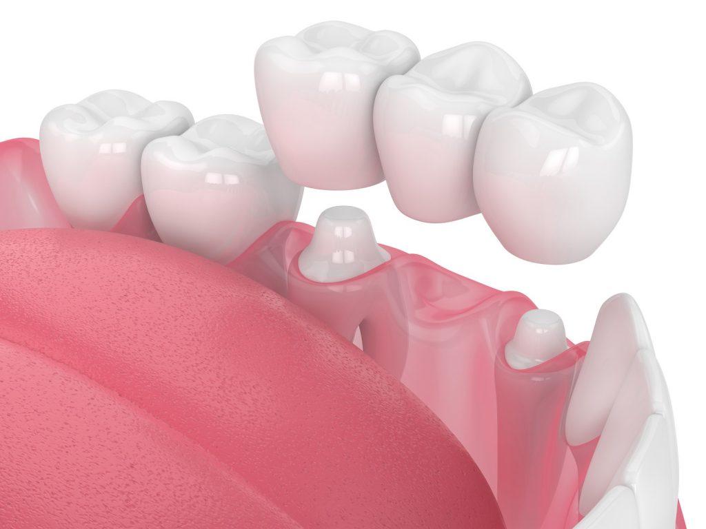 Wskazania do założenia korony zębowej