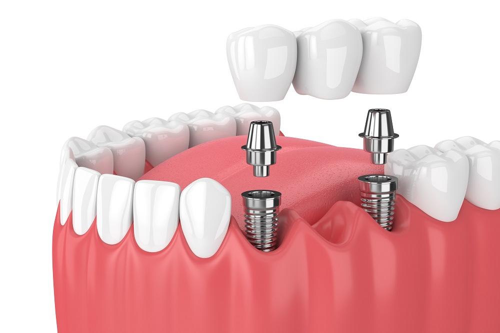 implanty stomatologiczne dwufazowe