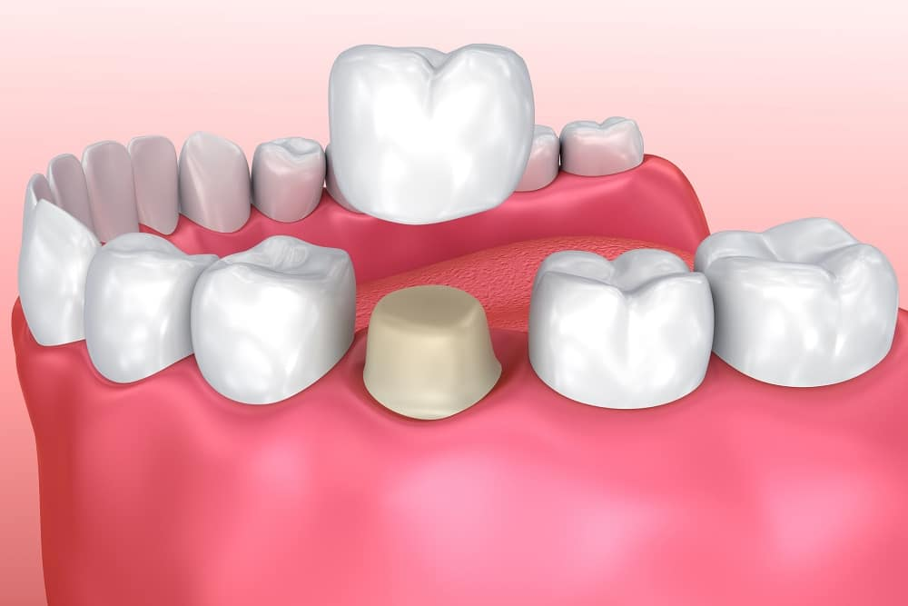 korona zębowa