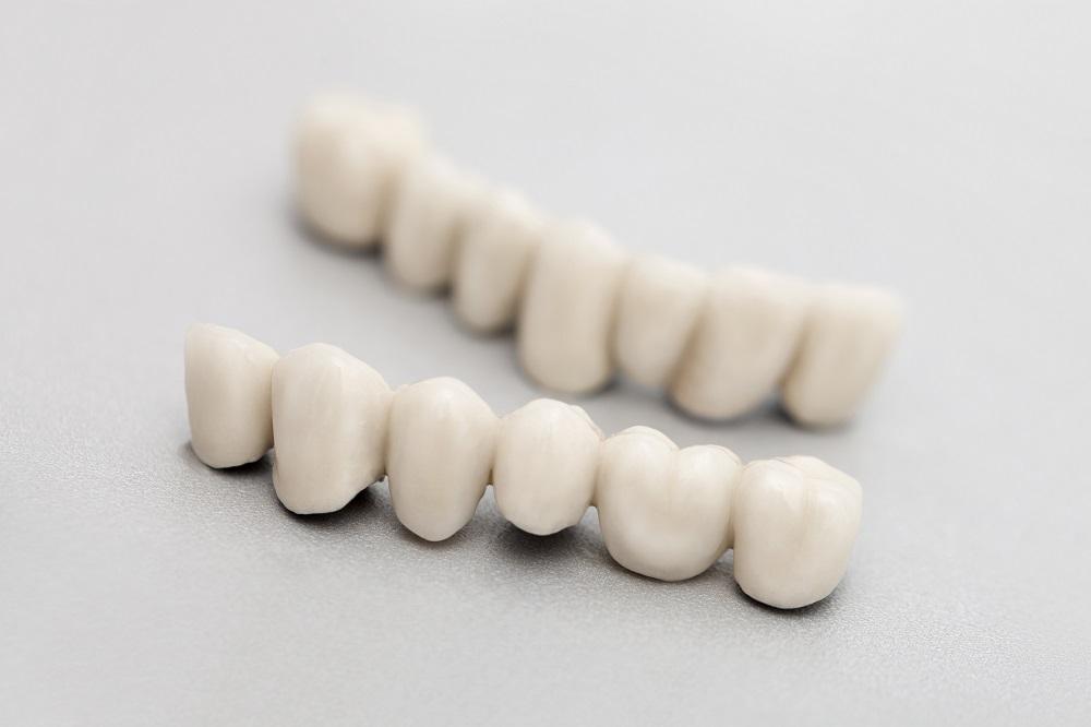 Most dentystyczny