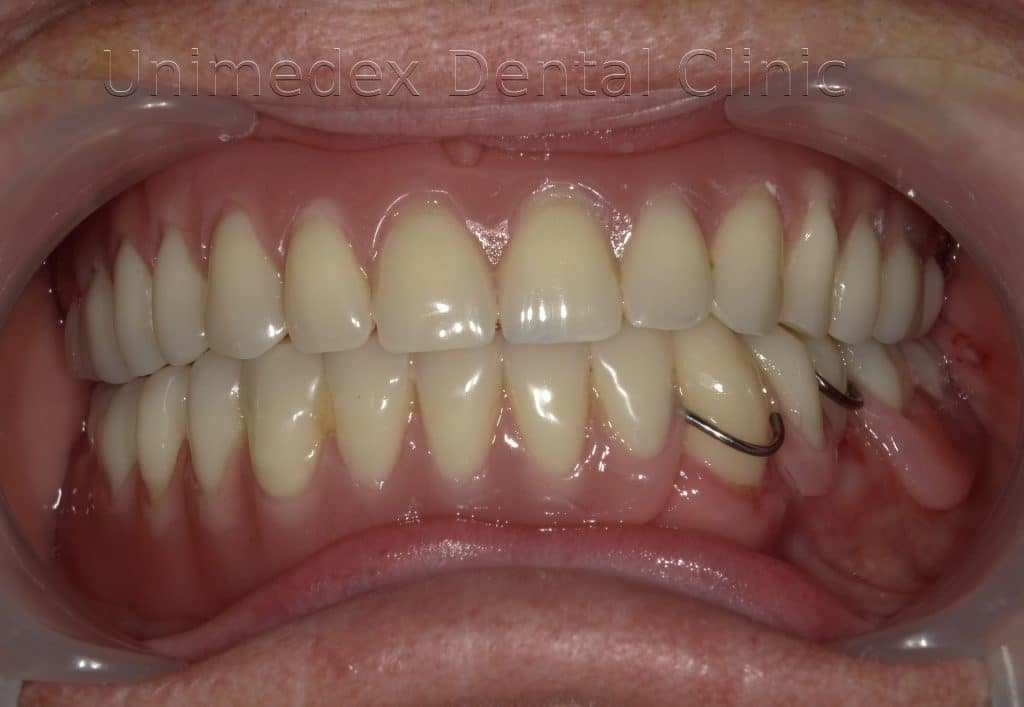 proteza na zęby